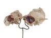 Sammlung der Universitätsklinik für Hals-Nasen-Ohren-Heilkunde, Kopf- und Hals-Chirugie